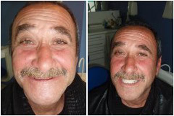 La ONG APES y la franquicia Dental Company devuelven la sonrisa a Tony