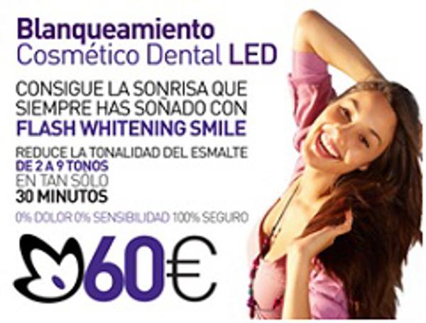 Franquicias bodysiluet revoluciona el mercado con su blanqueamiento dental